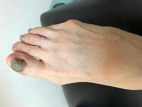外反母趾が原因で体中が痛くなった症例